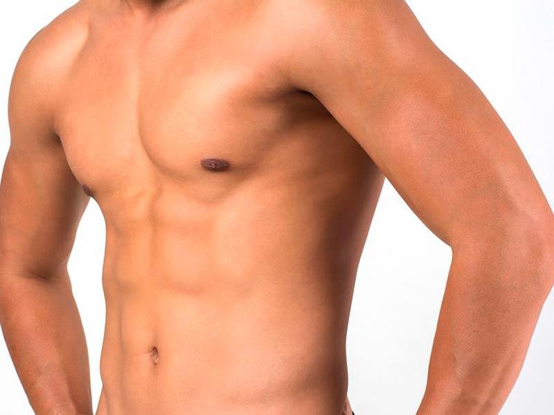 Cirugia-estética-masculina-Malaga-ginecomastia